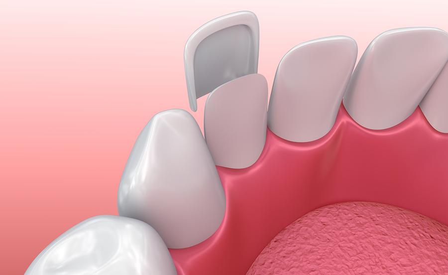 Why would I need dental veneers?